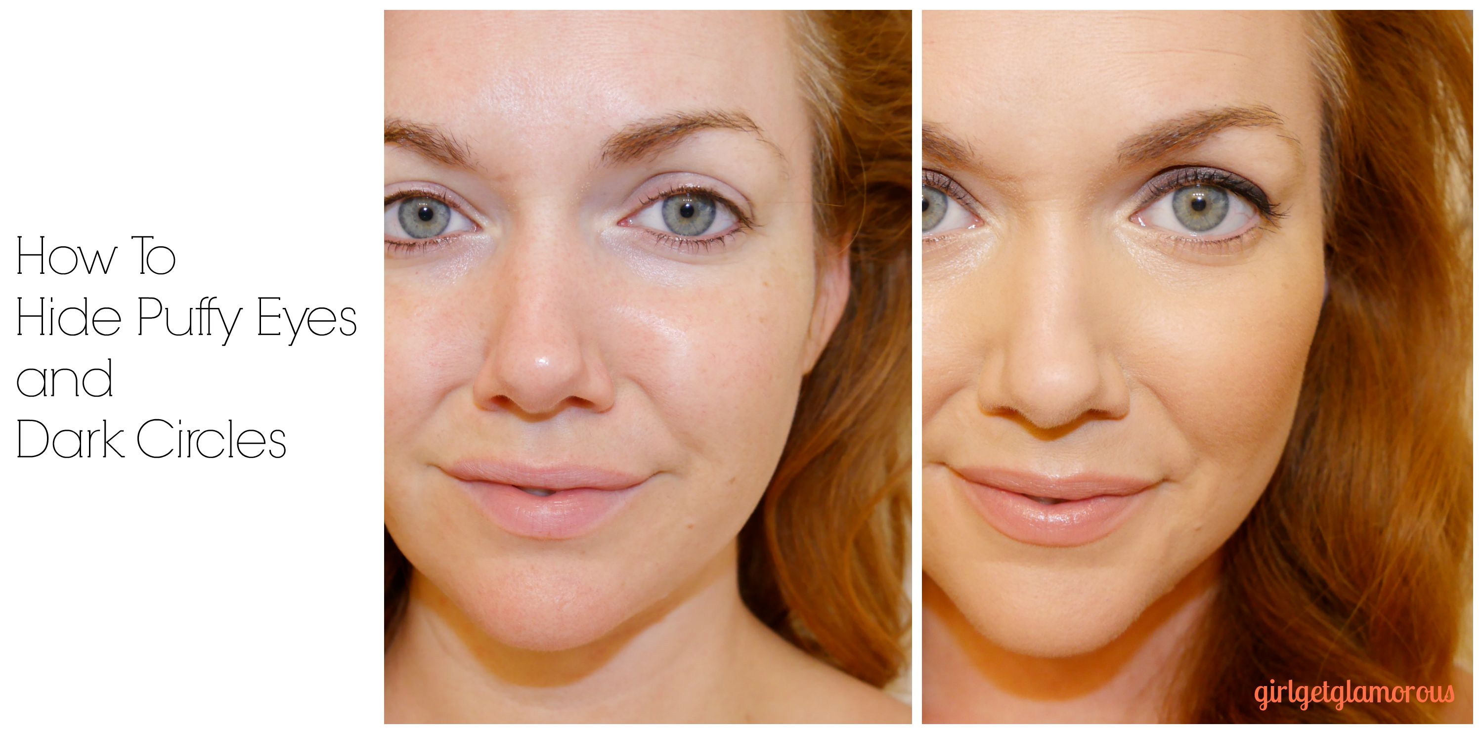 Pack Your Bags: How To Hide Under Eye Circles ...