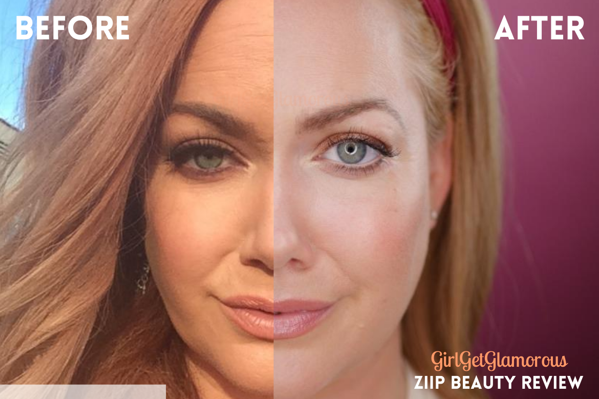 ziip beauty results before after