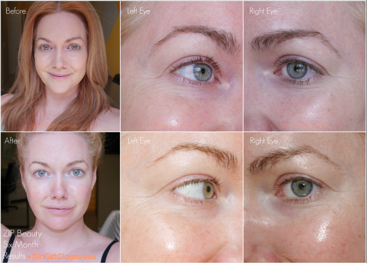 ziip beauty 6 month result before and after photos